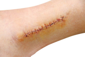 Stitches in the leg (ankle)